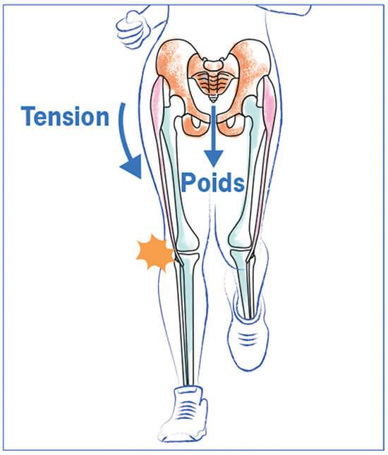 DESSIN 1: un hauban latéral tire en sens inverse de votre poids de corps et cause le syndrome de l'essuie-glace
