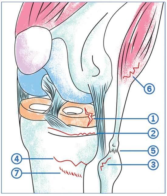 Les douleurs externes du genou possibles chez un coureur
