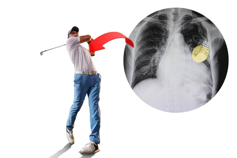 Faire du golf-avec un stimulateur cardiaque ou un défibrillateur