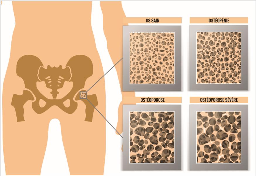 La randonnée contre l'ostéoporose